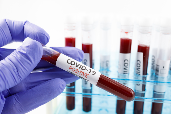 Infectiousness peaks early in Covid patients: Lancet study