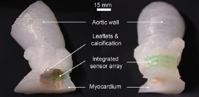In a first, researchers 3D print lifelike heart valve models