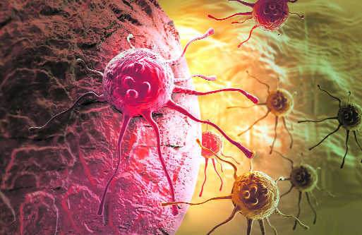 Novel tech may help cancer patients manage symptoms