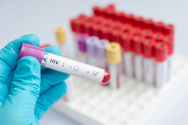 IIT team shows way for effective drugs to treat HIV/AIDS - The Tribune India