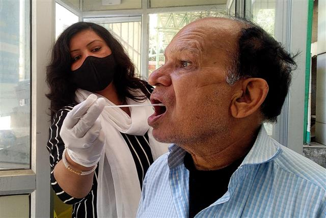 80 fresh virus cases in Chandigarh; total count 22,318