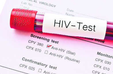 Indian researchers develop nanozymes that can block HIV reactivation