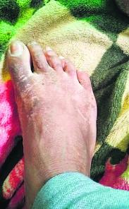 ETT teachers atop mobile tower develop skin condition