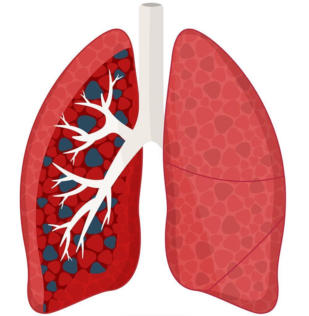 TB eradication theme marks World Health Day