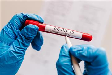 Chandigarh reports 787 new COVID cases, 10 deaths