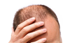 100 pc rise in hair loss complaints among Covid patients at Delhi hospital