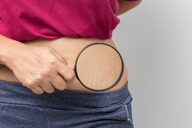 Stretch marks are only a cosmetic problem, but if extensive, they may ulcerate or tear easily
